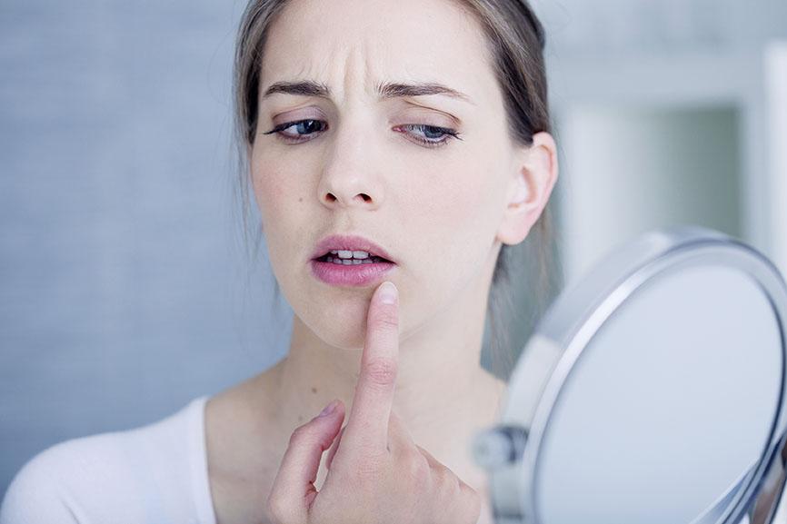 herpes-labial-consejos