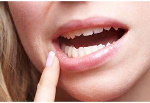 ¿Por qué nos salen llagas en la boca?