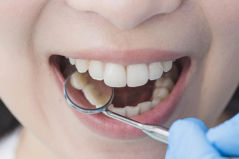 revisión dentista tras el verano